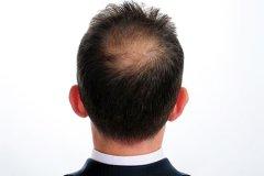 护理男性白癜风措施有哪些